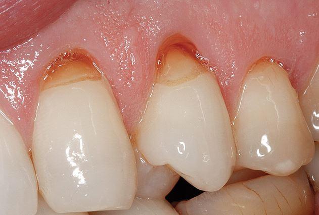 Abrasion Of Teeth