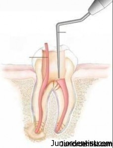 root canal treatment in restorative dentistry