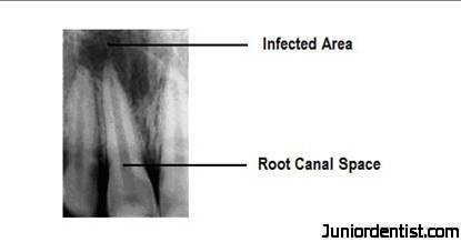 What is Root Canal Treatment or Therapy