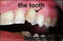 tooth-discoloration