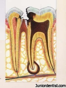 dental-caries