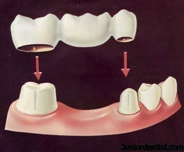 https://www.juniordentist.com/wp-content/uploads/2011/11/bridge1.jpg