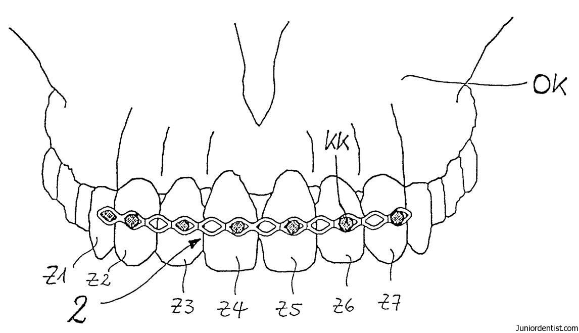types of dental splints