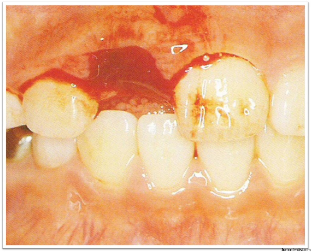 Tooth Avulsion - Exarticulation of Tooth  Treatment and Management