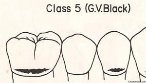 Class V Carious Lesion