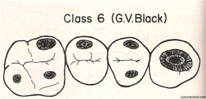 Class VI Carious lesion
