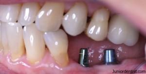 Useful Tips for dental implants care