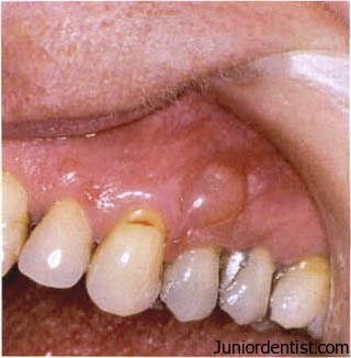 Gingival cyst of the adult