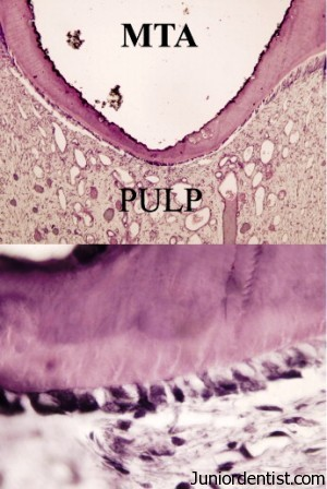 Direct pulp capping - Dentin bridge formation