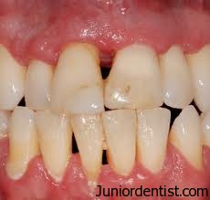 Gum diseases in Old Age
