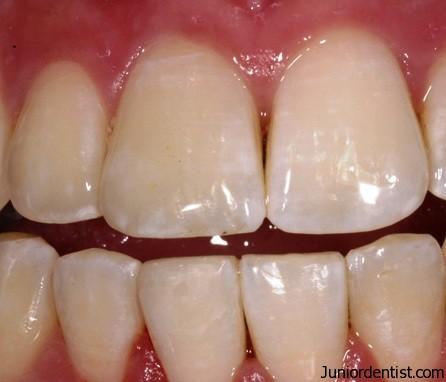 Differences Between Maxillary And Mandibular Incisors Anatomically