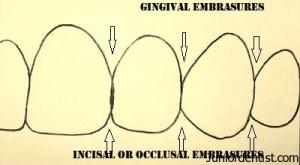 Embrasure or Spillways