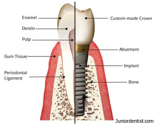 define dental implants