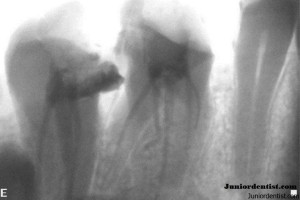 Maxillary Molar with 6 root canals