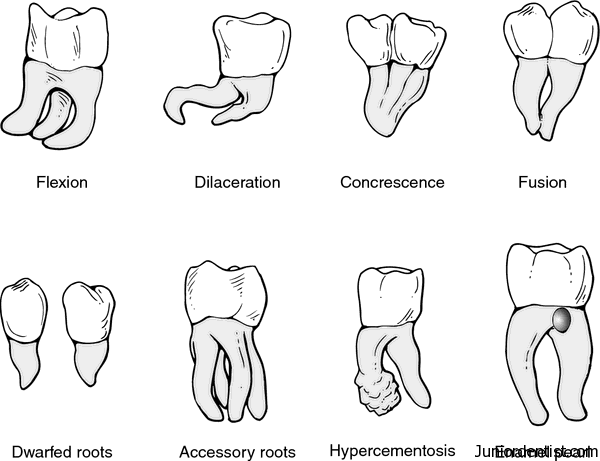 Anamolies of Tooth in the form of Variations in Root Form