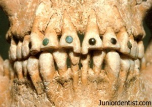 Egyptian dental jewellery in ancient times
