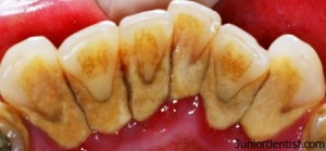 Crystal forms in sub gingival and supra gingival calculus