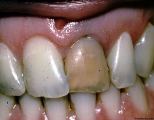 Discoloration of tooth due to Trauma