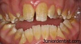 Tooth Discoloration due to fluorosis stains
