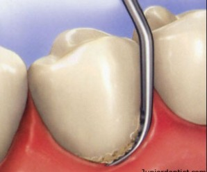 Scaling in restorative dentistry