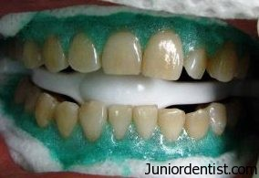 Teeth Whitening - bleaching procedure
