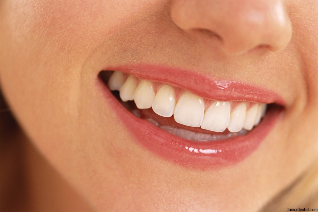 Teeth Whitening procedures