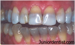 Tetracycline Stains - tooth discoloration
