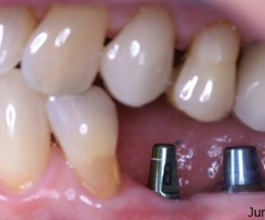 Tips for dental implants care