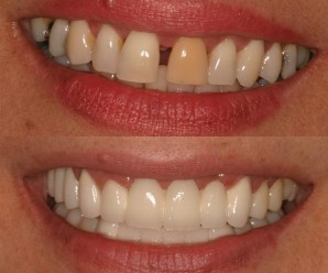 cosmetic dentistry treatment procedures