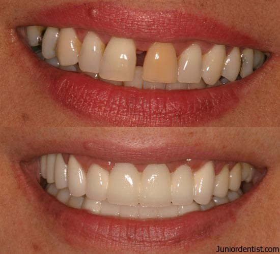 Cosmetic Dentistry Treatment Abroad