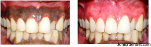 de pigmentation of gums - Cosmetic dentistry