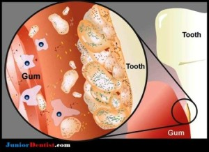 Hundreds of microbial biofilm colonize the human mouth, causing tooth decay and gum disease.