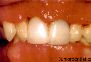 ANUG - Punched out lesions of the interdental papilla