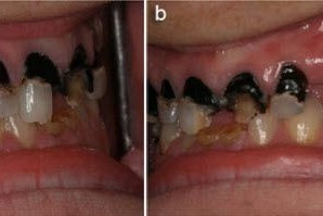 Caries Susceptibility in primary and permenant teeth