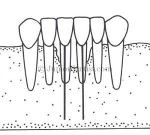 Endodontic implants uses