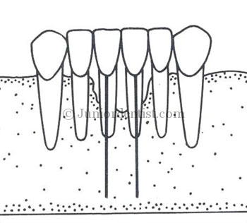 Endodontic implants uses