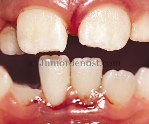Luxation injuries of Teeth