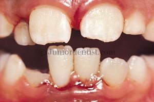 Luxation injuries of Teeth