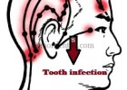 refereed pain in head and region due to tooth infection
