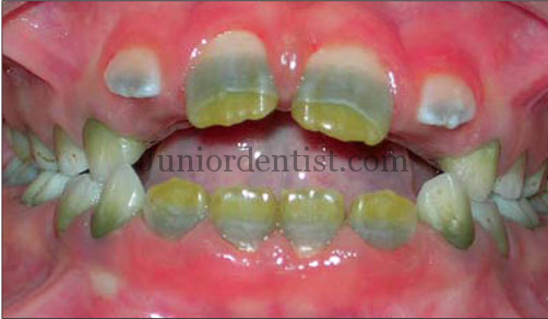 Stains on teeth due to Chromogenic bacteria - Orange, green and yellow stains