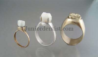 Tooth Wedding Rings