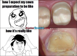 Tooth Preperation expectation and end result