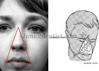 dangerous area of face or dangerous triangle of face