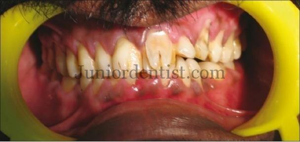 Rare Facial Talons cusp