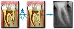 Smartseal Endodontic Obturation technique