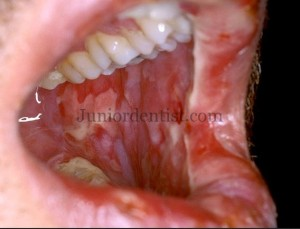 Drugs causing Mucositis or Oral burns