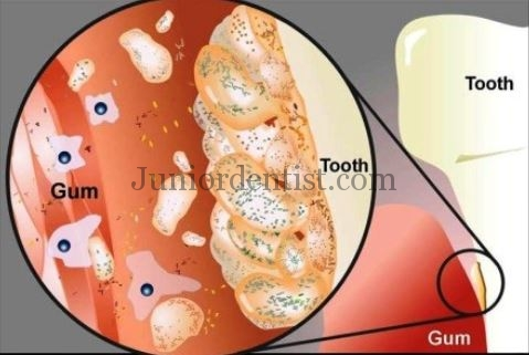 Micro organisms predominantly found in various parts of Oral cavity