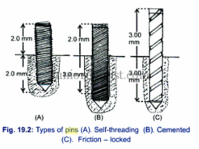 Properties of Retentive Pins placement in Dentistry