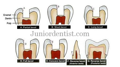 Types of Bevels and their uses in tooth or cavity preperation