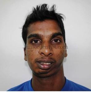 Unilateral TMJ Ankylosis